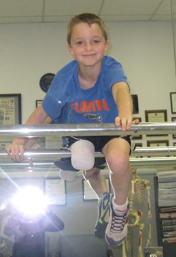 Ben playing on the bars, waiting on his new leg!